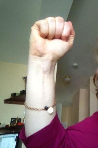Wrist_scar